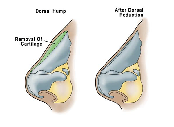 dorsal hump.png