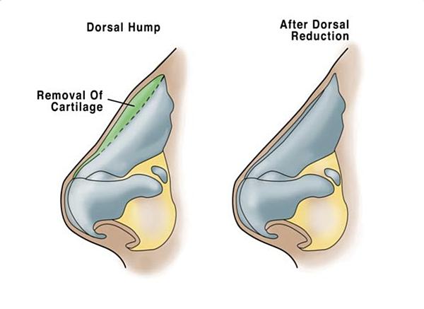 dorsal hump.png