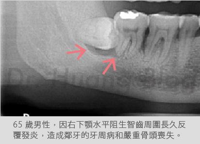 口內智齒X光片-01.jpg
