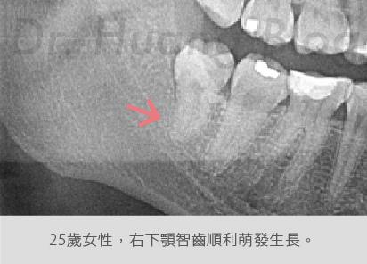 口內智齒X光片-05.jpg