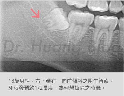 口內智齒X光片-06.jpg