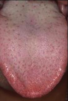 味乳突.png