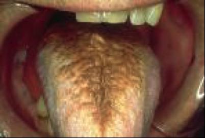 黑苔舌.png