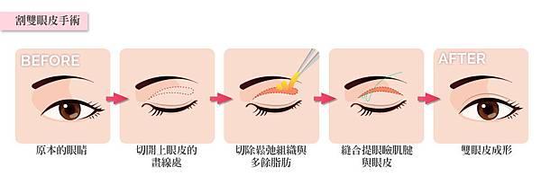 4.割雙眼皮