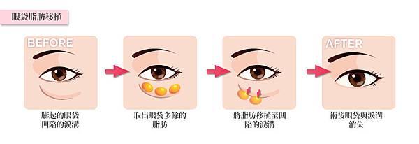 9.眼袋脂肪移植