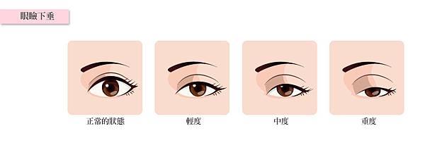 13.眼皮下垂