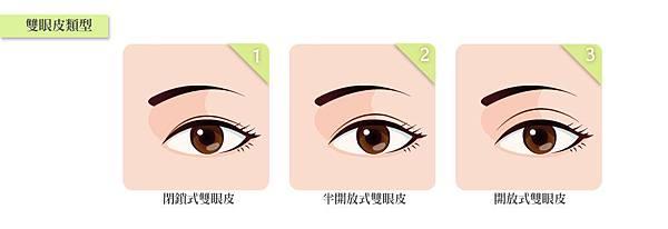 3.雙眼皮分類