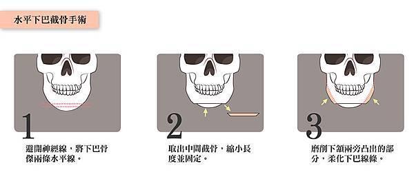 3水平下巴截骨手術