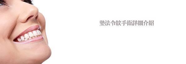 1墊法令紋手術詳細介紹.jpg