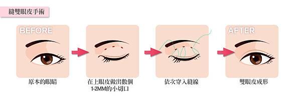 3縫雙眼皮