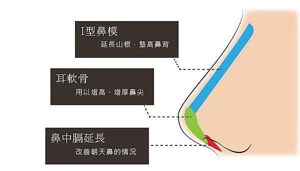 5三段式隆鼻-01.jpg
