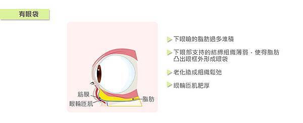 眼袋-01.jpg