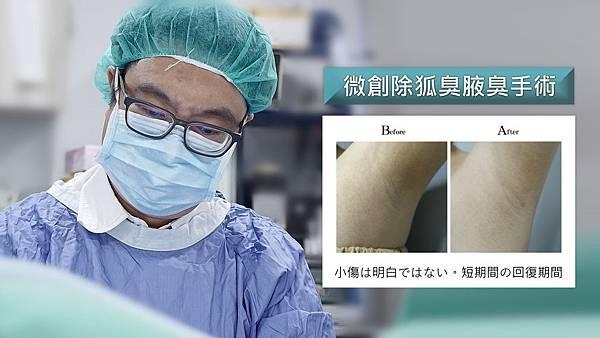 台中微創除狐臭手術PTT權威醫師推薦台中狐臭治療改善.jpg