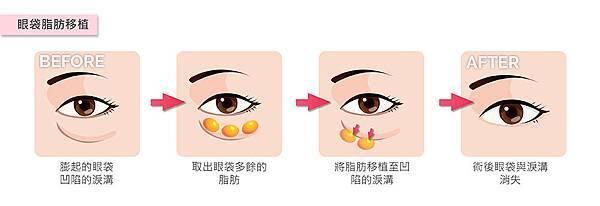 眼袋脂肪移植-01.jpg