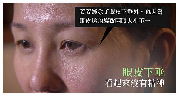 004自體脂肪補臉豐頰手術術後照顧保養熱敷恢復期.jpg