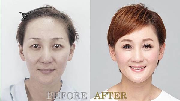 013自體脂肪補臉豐頰手術消腫多久失敗缺點後遺症維持多久.jpg