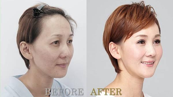 014自體脂肪補臉豐頰手術術後照顧保養熱敷恢復期.jpg