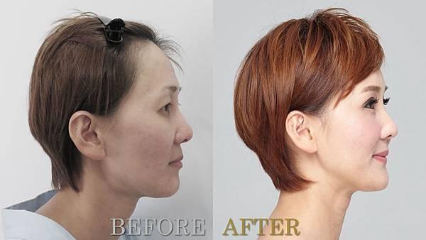 015自體脂肪補臉豐頰手術部落客案例分享.jpg