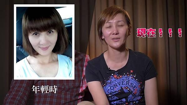 002自體脂肪補臉豐頰手術推薦元和雅米蘭台北亞緻.jpg