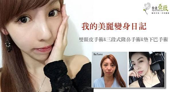 000三段式隆鼻手術價錢價格價位費用.jpg