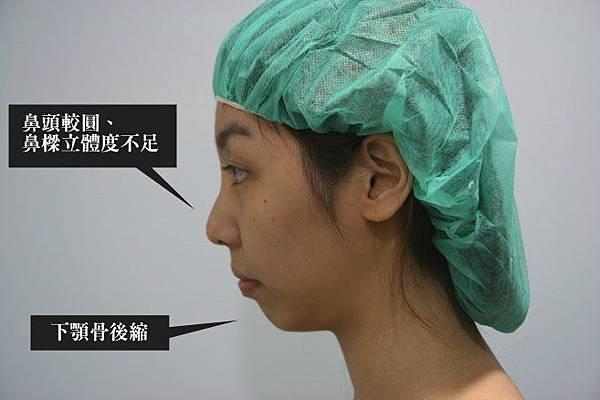 003三段式隆鼻手術縮鼻翼推薦醫師 星采邱大睿 台北.JPG