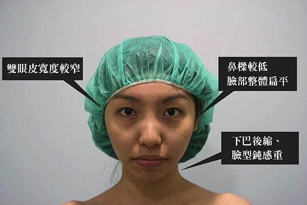 002三段式隆鼻手術術後照顧心得差別照片分享.JPG