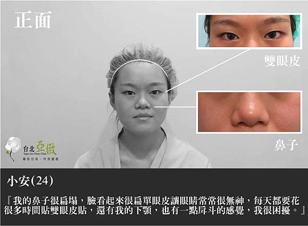 001割縫雙眼皮手術開眼頭術後失敗復原恢復期疤痕會痛嗎.jpg