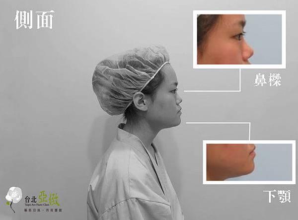 002割縫雙眼皮手術化妝維持消腫時間多久方法.jpg