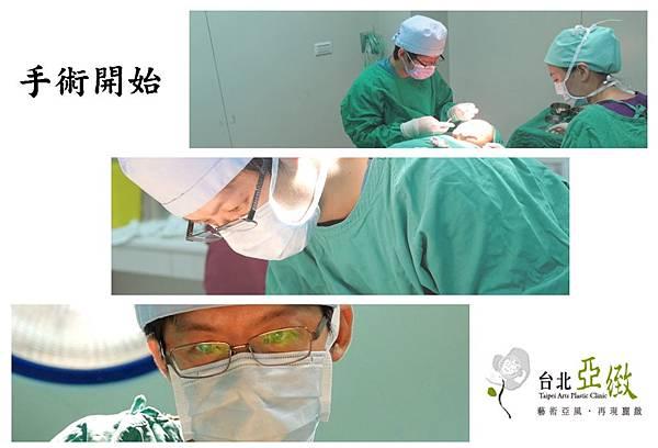 005三段式隆鼻手術術後照顧心得差別照片分享.jpg