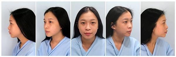 008縮鼻翼手術失敗恢復期後遺症疤痕.jpg