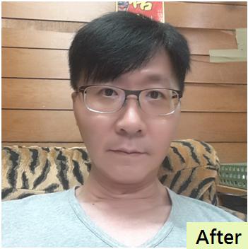 005微粹脂水刀拉皮手術腹部後遺症恢復期疤痕.png