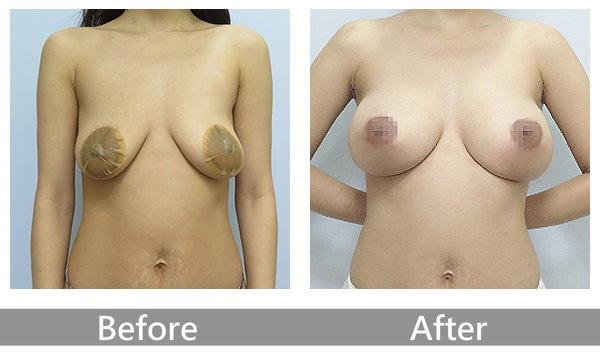 002提乳手術疤痕胸部下垂術前術後BEFORE&AFTER
