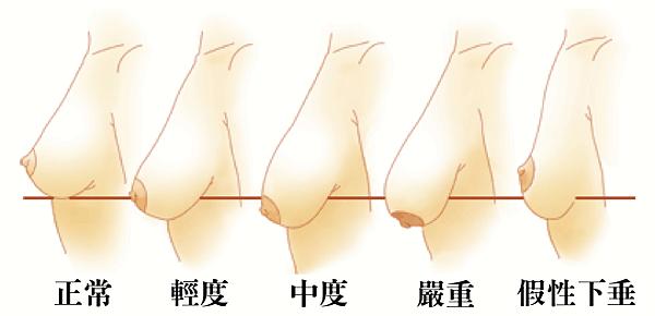 003提乳手術胸部下垂圖