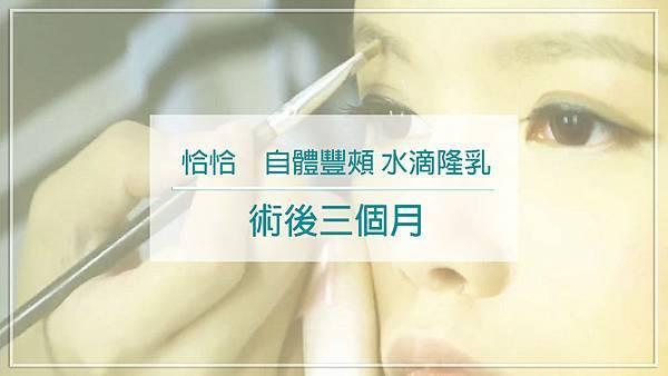 水滴隆乳 自體脂肪補臉 王祥亞隆乳權威