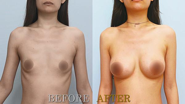 水滴隆乳術前術後案例分享