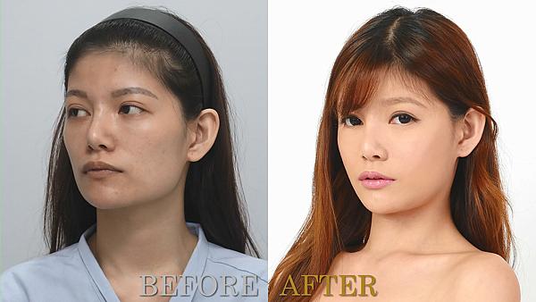 自體脂肪補臉術前術後對比