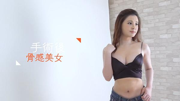 19.二代威塑VASER2.2抽脂手術.jpg
