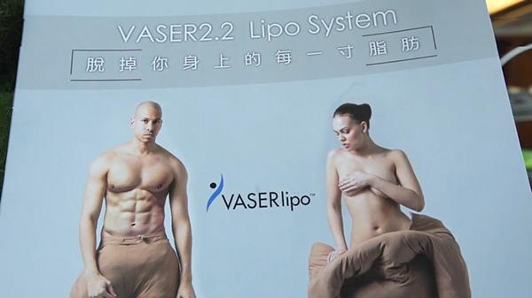 10.二代威塑VASER2.2抽脂手術.jpg