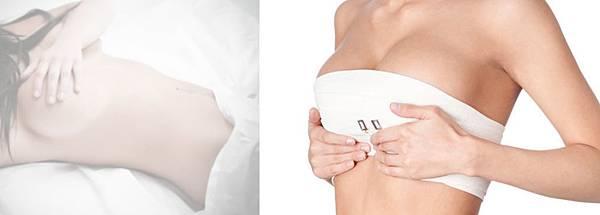 07隆乳手術後遺症風險副作用.jpg