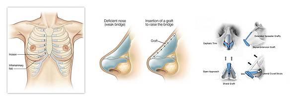 05二次隆鼻手術失敗重建失敗後遺症風險副作用.jpg
