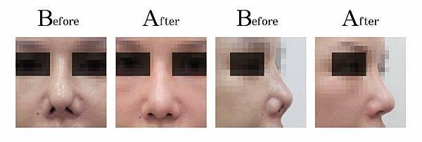 顏正安醫師二次隆鼻鼻整形重建案例.jpg