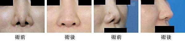 許英哲二次隆鼻鼻整形重建案例.jpg