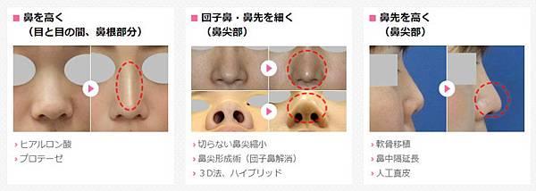 02隆鼻手術失敗二次隆鼻價格價位費用價錢又是如何計算?.jpg