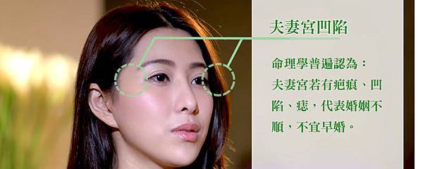 002自體脂肪豐補額頭&夫妻宮-Ivy的豐額補脂美麗進化2.0.jpg