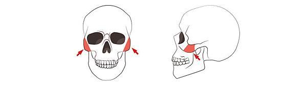 02顴骨削骨,下顎骨角削骨,下巴截骨V-Line手術價格費用價錢價位.jpg