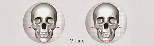 比墊下巴手術更自然的下巴截骨V-Line手術.jpg