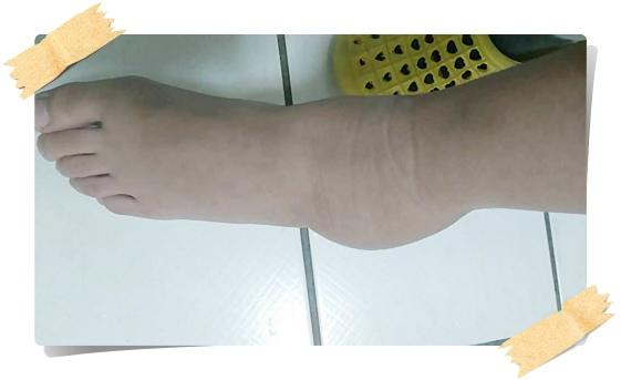 腳扭傷 (1).jpg