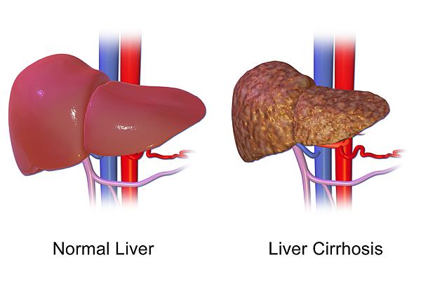 Liver_Cirrhosis.png