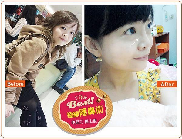 14-01-20 娟-3D隆鼻