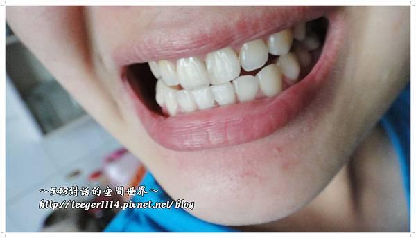 雲南白藥牙膏16
